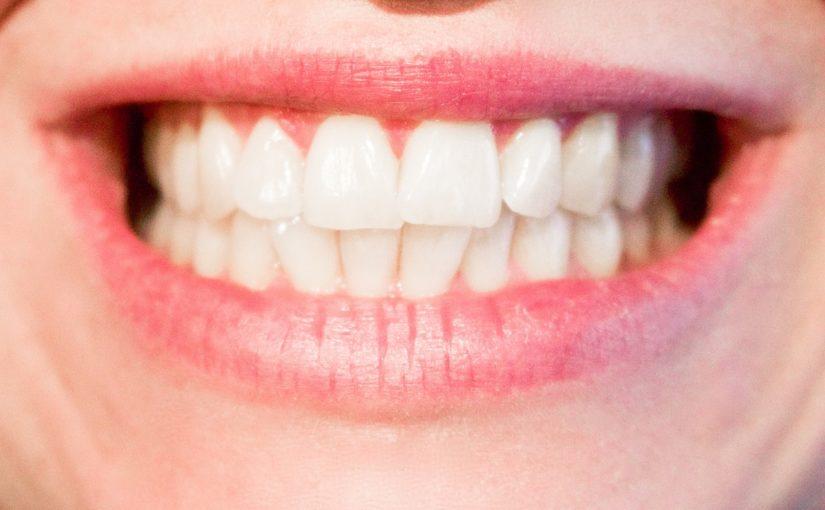 Obecna technika stosowana w salonach stomatologii estetycznej być może spowodować, że odbierzemy śliczny uśmieszek.