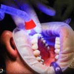 Zły sposób żywienia się to większe niedobory w ustach a także ich utratę
